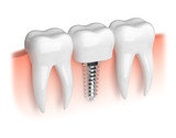 Model of white teeth and dental implant - 74379667