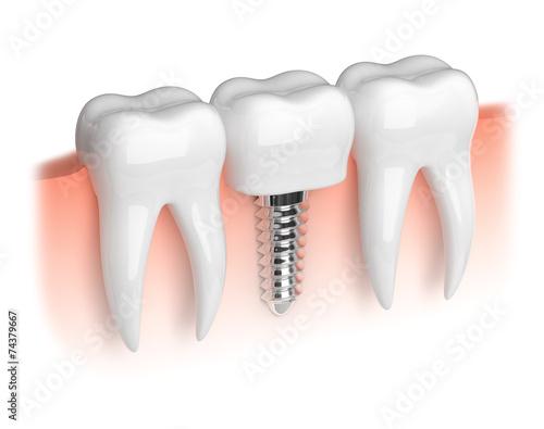 Fototapeta Model of white teeth and dental implant