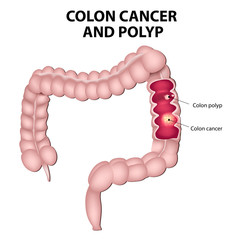 Colon cancer and colon polyps