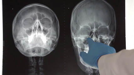 Medical Doctor Pointing to Head X-ray