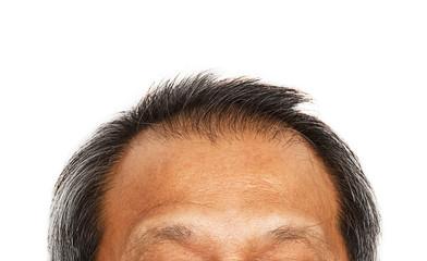 Hair loss , Male head with hair loss symptoms