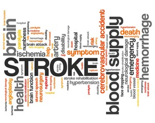 Stroke - word cloud concept