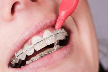 Zahnreinigung mit Zahnklammer