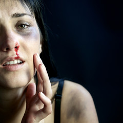 Woman with blood and bruises feeling pain after violence