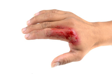 bloody wounds on hand