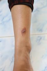 blisters on Leg.