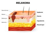 Melanoma or skin cancer poster
