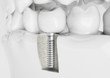 Zahn Implantat - 74725618