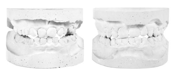 Gipsabdrücke vor und nach der Behandlung