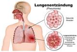 Lungenentzündung, Pneumonie