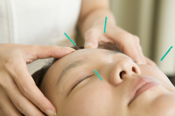 Acupuncture for beauty