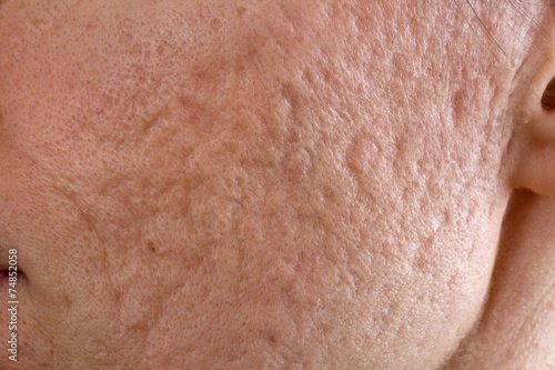 Acne scars on cheek - 74852058