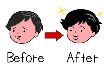 髪が減った男性とふさふさの男性