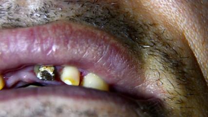 Dental teeth prepared for bridge montage
