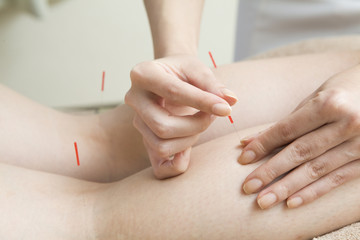 Calf of acupuncture