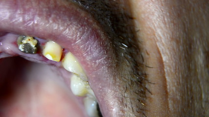 Dental check of teeth prepared for bridge montage