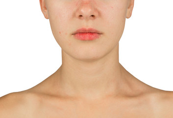 problem skin face