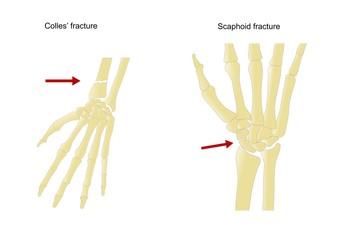 Fratture comuni dell'avambraccio e mano