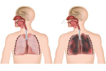 Gesunde Lunge, Raucherlunge