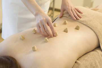 Moxibustion of back
