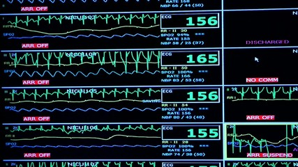 Overall nurses station monitor in the NICU ECG