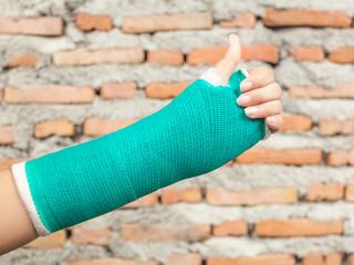 Splint,broken bone,broken hand.