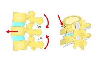 fratture vertebrali