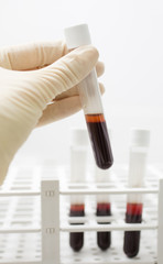 examination blood samples