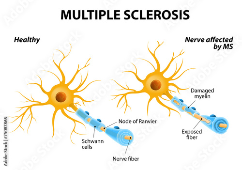 Multiple Sclerosis - 75097866