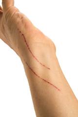 猫の引っ掻き傷