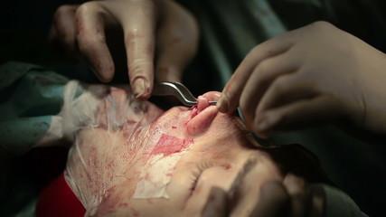 Oral and Maxillofacial Surgery. The surgeon makes facial contour