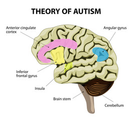 theory of autism