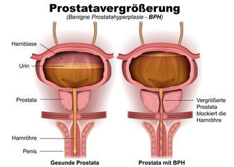 Prostatavergrößerung, BPH, anatomie illustration
