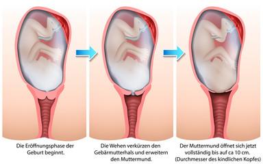 Die Eröffnungsphase der Geburt, medical illustration