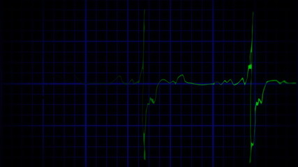 EKG true to life green blue shadow loopable