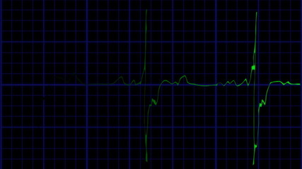 EKG true to life green on blue loopable