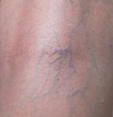 woman leg skin with vascular problems