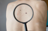 Checking melanoma on the back of a man poster