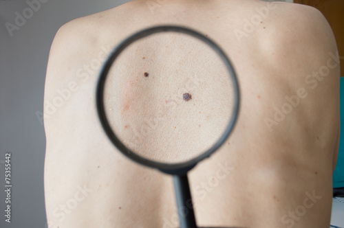Checking melanoma on the back of a man - 75355442