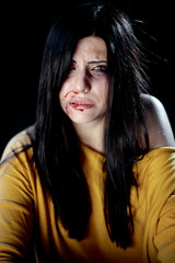 Beautiful woman bleeding after being hit