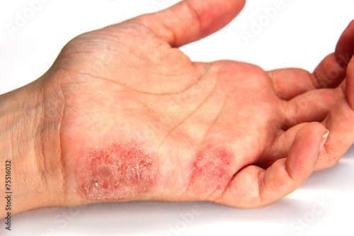 Zdjęcia na płótnie, fototapety, obrazy : Skin Disease