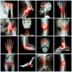 Collection human joint and arthritis and stroke