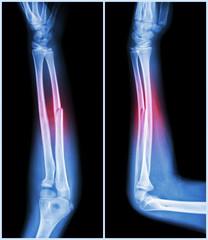Fracture shaft of ulnar bone ( forearm bone )