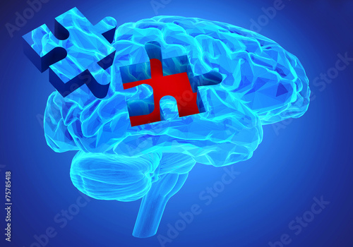 Dementia disease and a loss of brain function and memories - 75785418
