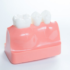 Close up of a Dental  implant model.
