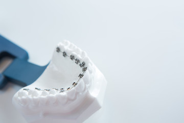 Dental lower jaw bracket braces model on white