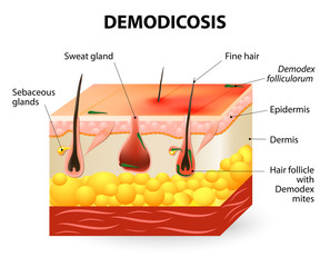 demodicosis. Demodex mite