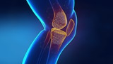 Pain in knee with therapeutic effects poster