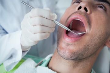Close up of man having his teeth examined