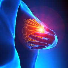Female Breast Examination - Cancer Awareness concept